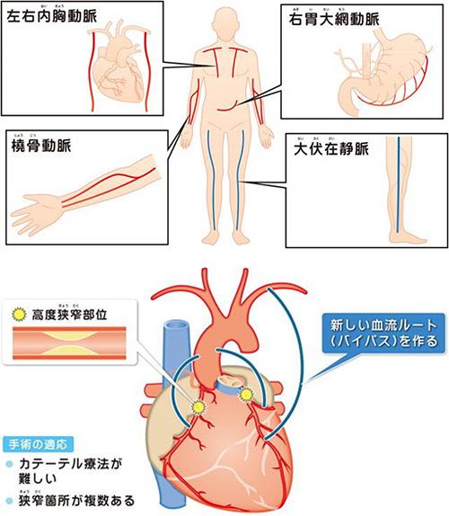 梗塞 手術 心筋 カテーテル